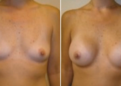 Before and after photo of breasts